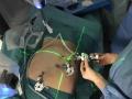 Da Vinci XI puntamento del campo operatorio per una resezione del retto