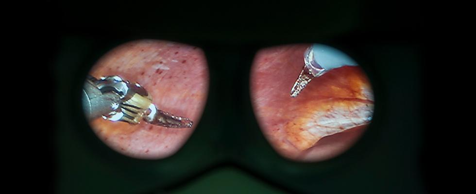 Intervento di chirurgia